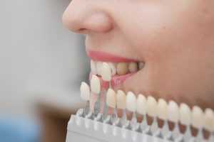 tooth-colored filllings better than metal